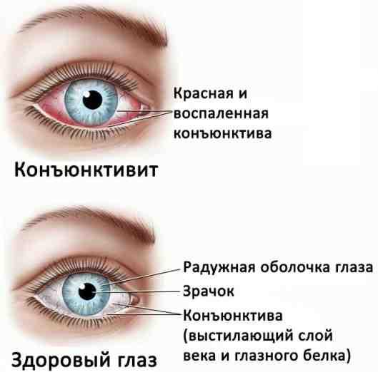 Как промывать глаза при конъюнктивите