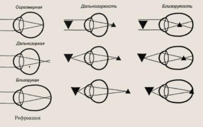 Как возникают близорукость и дальнозоркость