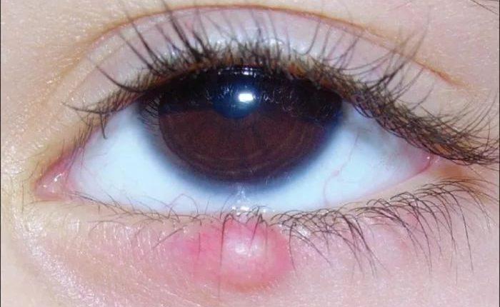 Как передается ячмень на глазу