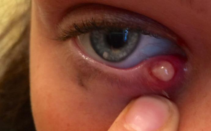 Как заговаривать ячмень на глазу