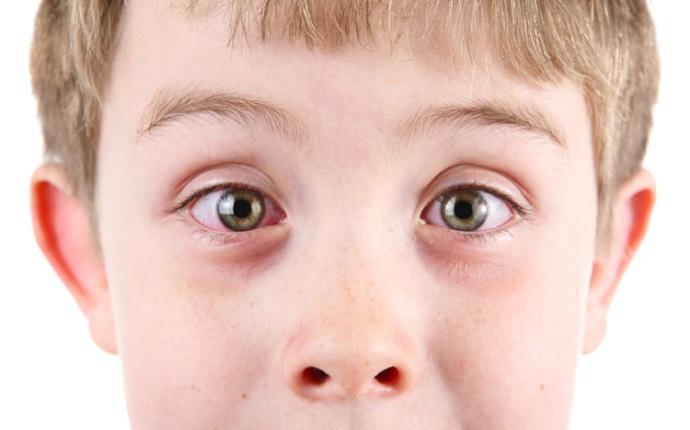Как начинается конъюнктивит у детей