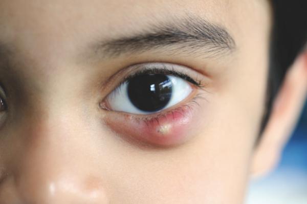Чем лечить ячмень на веке глаза