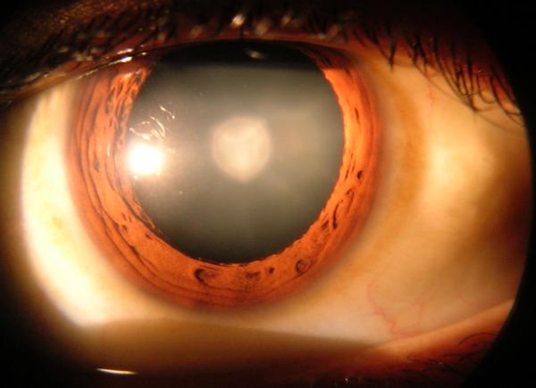 специалистов операции по удалению катаракты