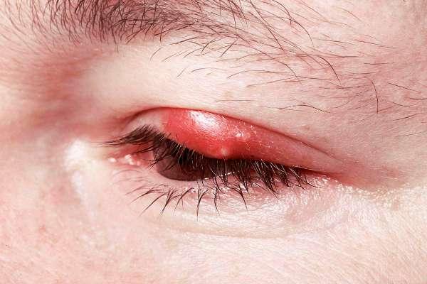 Как можно скрыть ячмень на глазу?