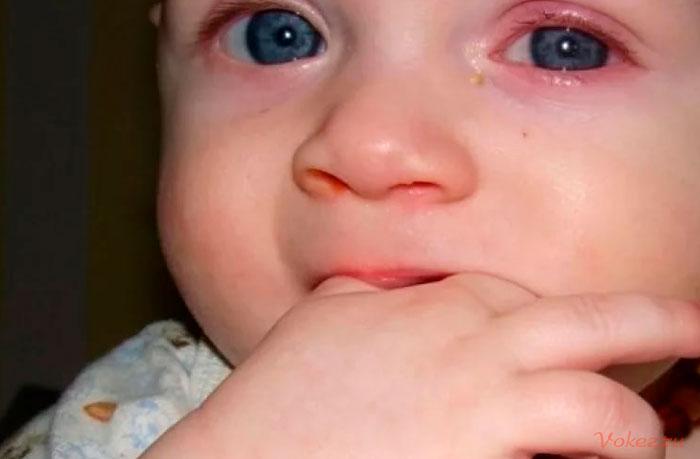 Блефарит у детей