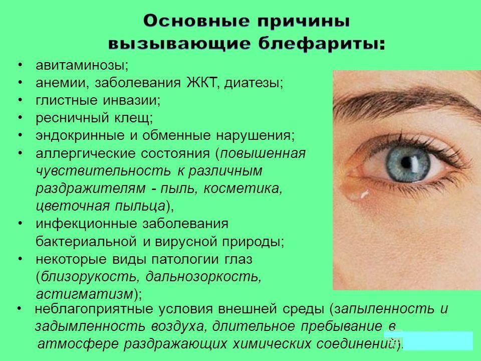 Причины Источник: zreniemed.ru