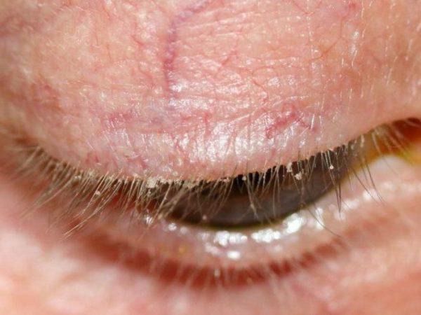 Медикаментозное лечение блефарита (препаратами) - капли, мази ...