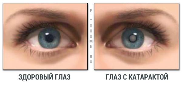 Как правильно закапать капли в глаза видео
