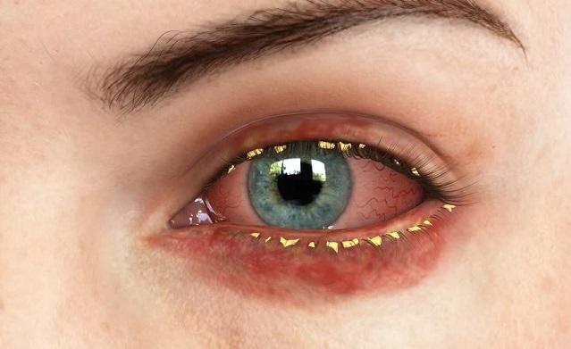 Мейбомиевый блефарит: лечение, симптомы, профилактика