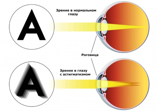 Чем опасен астигматизм и как его распознать