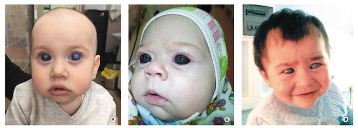 Глаукома у детей - виды болезни
