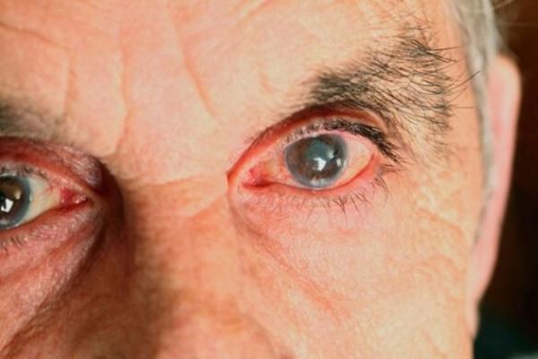 Глаукома, чем она так опасна?