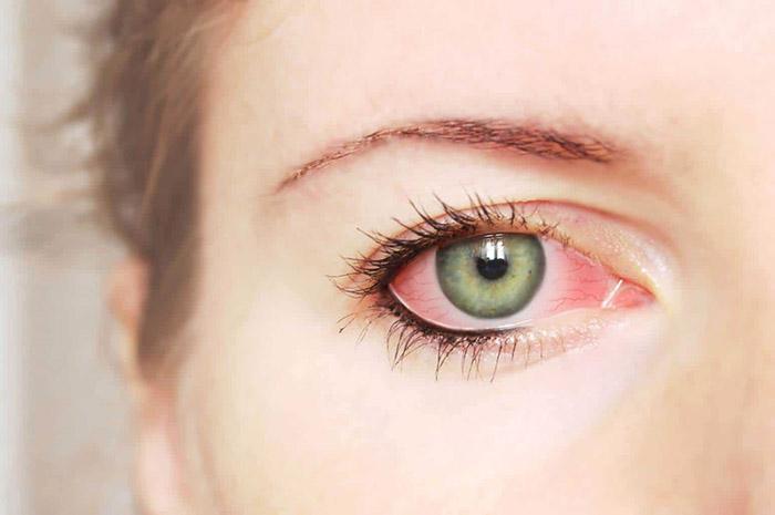 Глаукома - что это?