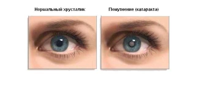 Что такое глаукома и катаракта глаза как ее лечить