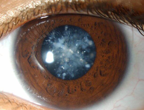 Клиническая картина развития катаракты