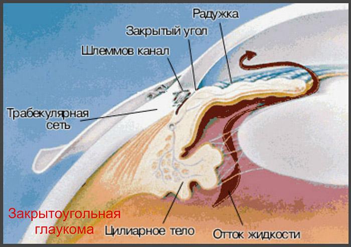 Первичные закрытоугольные глаукомы