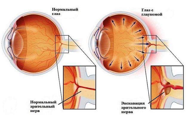Причины возникновения глаукомы глаза