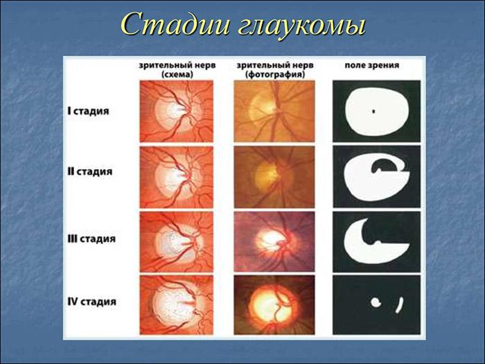 Стадии глаукомы