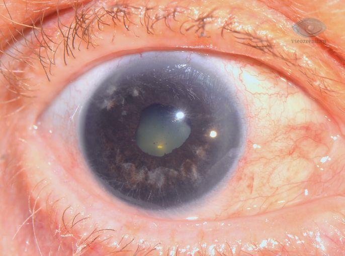 Виды, причины и симптомы факогенной глаукомы