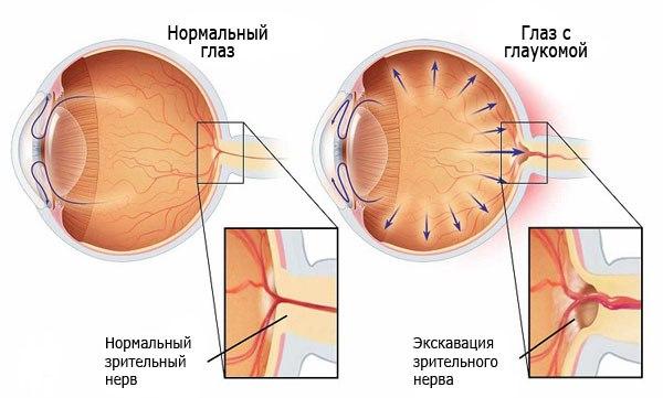 Этиология возникновения глаукомы