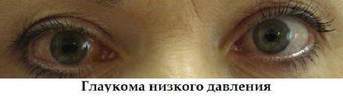 Глаукома нормального давления: лечение, диагностика