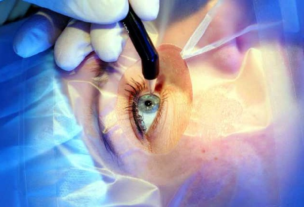 лазерная хирургия