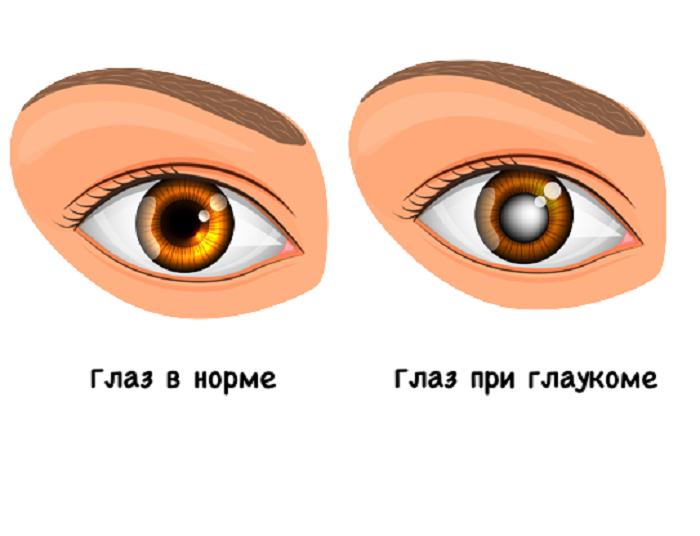 какое должно быть глазное давление при глаукоме