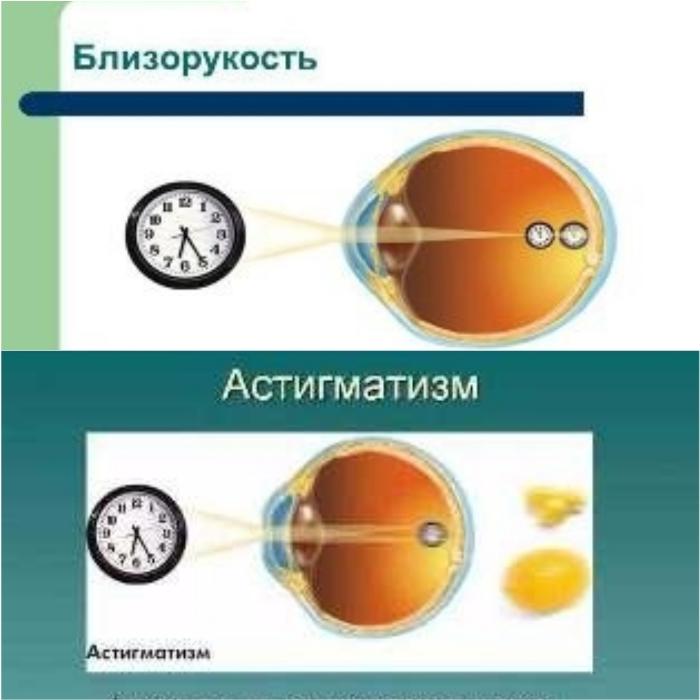 Что такое астигматизм и близорукость?