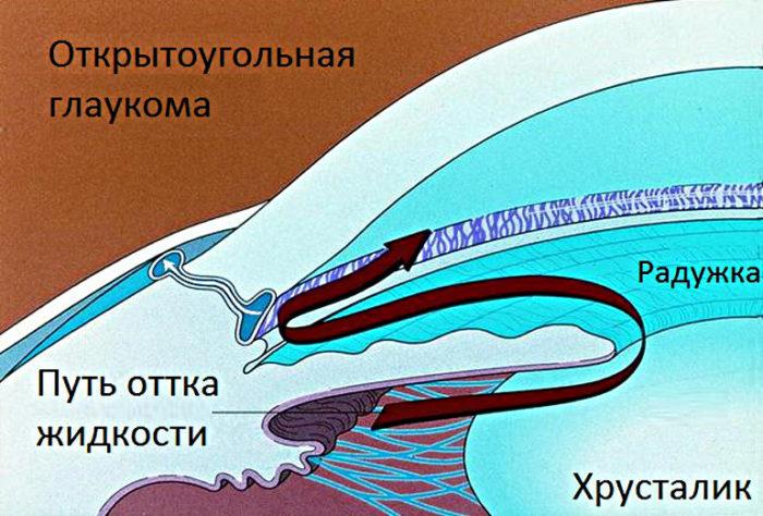 Первичные открытоугольные глаукомы