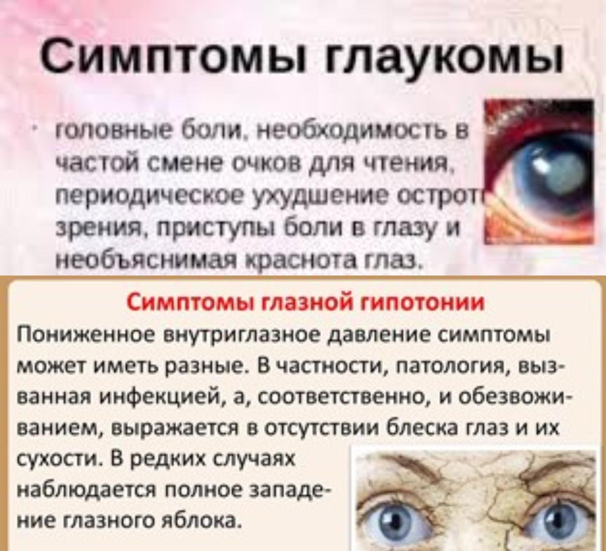 Симптомы глаукомы и внутриглазного давления