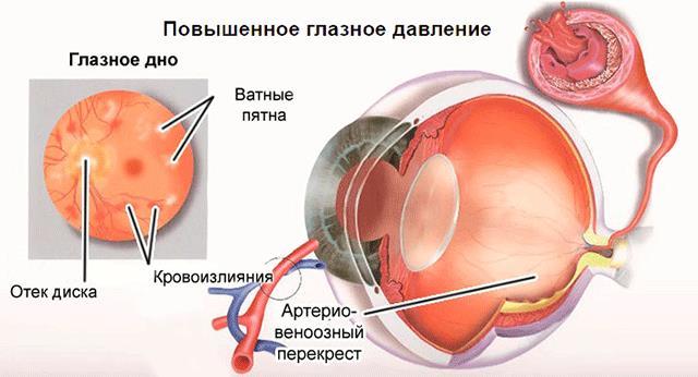 Виды глазного давления