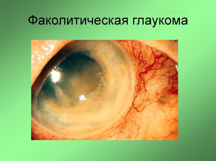 fakoliticheskaja-glaukoma