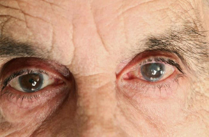 glaukoma-v-pozhilom-vozraste