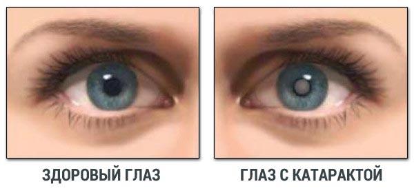 glaz-s-kataraktoj