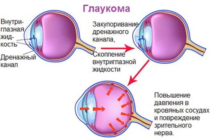 harakteristika-patologii-glaukoma