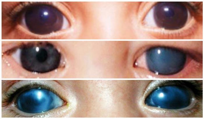 obshhie-svedenija-o-glaukome