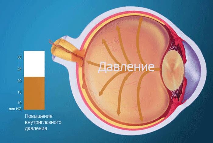 opisanie-vtorichnoj-glaukomy