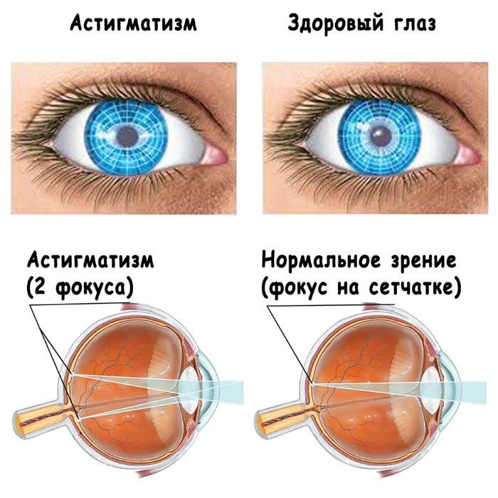 opredelenie-astigmatizma