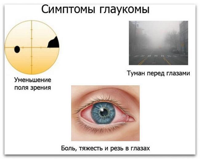Характерные признаки глаукомы глаза thumbnail