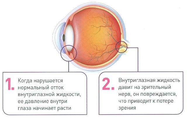 Причины ВГД и глаукоми