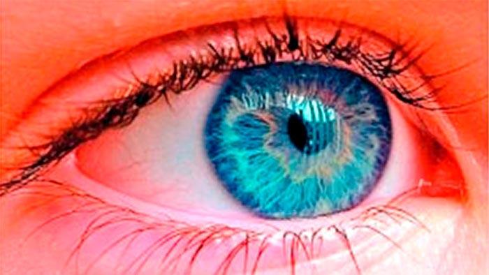 prichiny-astigmatizma