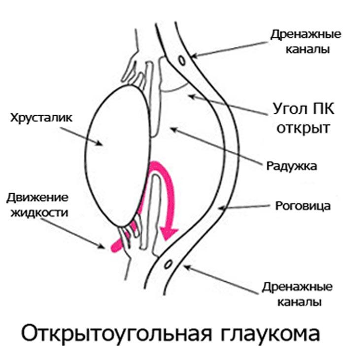 Симптомы катаракты и глаукомы глаза