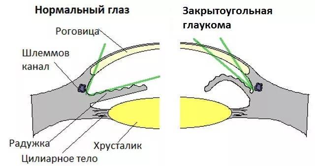 primer-zakrytougolnoj-glaukomy