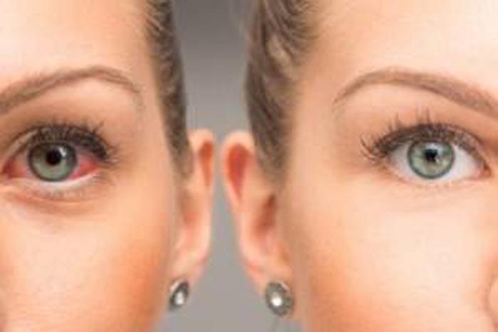 redkie-tipy-glaukomy