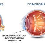 glaukoma-u-vzroslyh