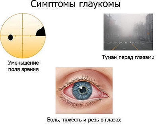 simpotomy-vtorichnoj-glaukomy