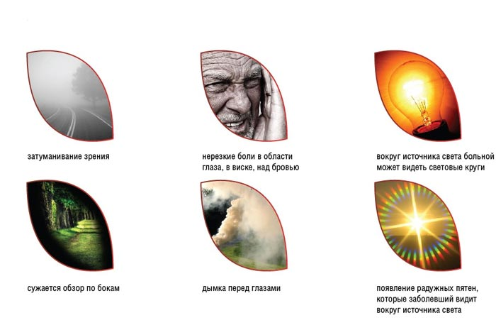 simptomy-zabolevanija-glaukoma