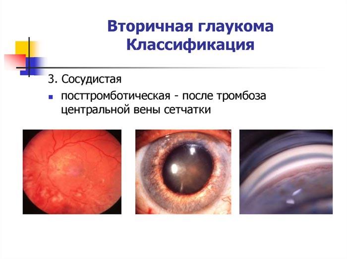 sosudistaja-glaukoma