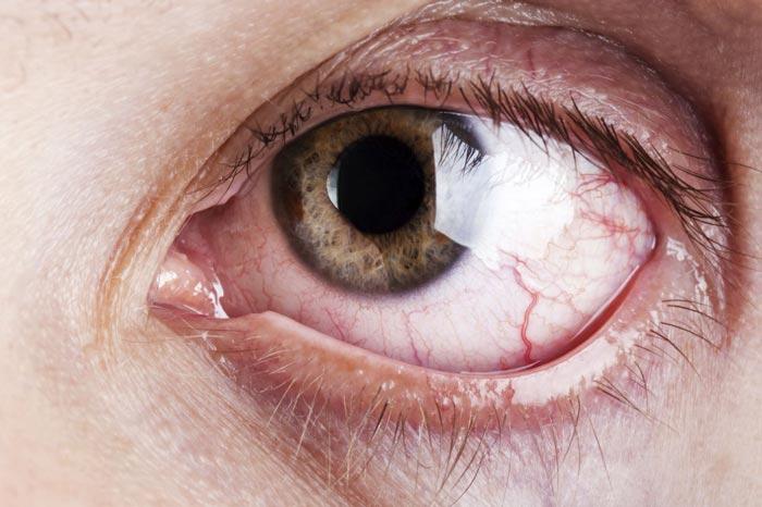 uvealnaja-glaukoma