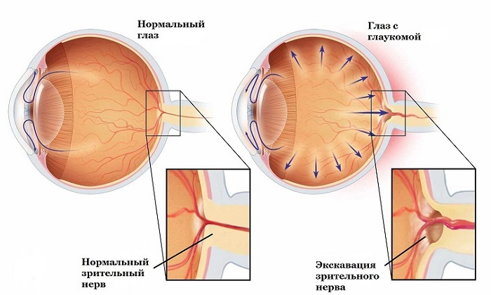 Лечится ли глаукома последней стадии: симптомы и способы лечения